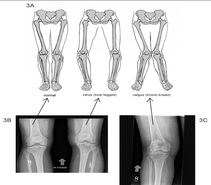 Quando si tratta di problematiche relative all'arto inferiore, siano esse relative al ginocchio, all'anca, alla caviglia o al piede, è importantissimo contestualizzarle nell'insieme dell'arto inferiore.