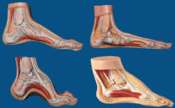 Fascite plantare - Studio FORM - Fisioterapia, Osteopatia, Riabilitazione a Milano
