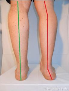 Il piede e la caviglia - Studio FORM - Fisioterapia, Osteopatia, Riabilitazione a Milano